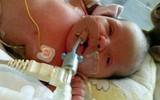 Sự sống sót thần kỳ của em bé sinh ra trong cơ thể toàn nước thay vì máu