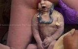 Cuộc vượt cạn đầy ngoạn mục của bà mẹ sinh thường ngôi thai ngược
