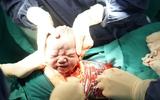 Khoảnh khắc em bé chào đời đầy xúc động dưới góc nhìn của nhiếp ảnh gia 9x