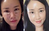 Chưa đầy 1 tháng mà khuôn mặt sau khi thẩm mỹ của Maya khiến nhiều người không nhận ra