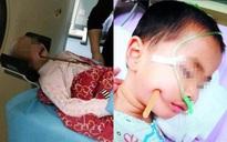 Nếu bạn vẫn còn nghĩ đũa ăn vô hại với trẻ nhỏ thì hãy xem những tai nạn kinh hoàng này