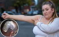 Chỉ 1 năm sau khi đặt que cấy tránh thai, cô gái trẻ bị tăng áp lực trong não, nhìn mờ và suýt tử vong