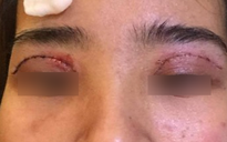 Là tiểu phẫu nhưng cắt mí hay bóc mỡ bọng mắt cũng có thể gây ra những hậu quả nhìn kinh khủng như thế này