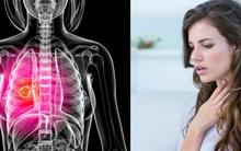 """Dấu hiệu ung thư phổi ở nam và nữ khác nhau: Chị em cảnh giác với những biểu hiện """"mập mờ"""""""