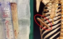 Thanh niên bị lưỡi dao 10 cm đâm lút ngực, thủng gan vẫn may mắn thoát chết
