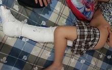 Học sinh lớp 2 bị gãy chân, gia đình nói do xe ô tô đâm trong sân trường, nhà trường nói tự ngã
