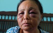 Vụ 2 người bán tăm bị đánh dã man vì nghi bắt cóc: Chúng tôi cầu xin nhưng dân làng vẫn lao vào đấm đá