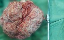 Người phụ nữ có bụng to như mang bầu, bác sĩ phẫu thuật mới phát hiện khối u khủng
