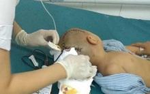 Thái Bình: Bé trai mầm non bị dập não