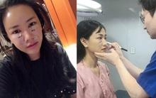 Sao Việt đang có xu hướng công khai quá trình phẫu thuật thẩm mỹ trên mạng xã hội