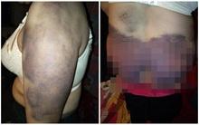 Người phụ nữ bị chồng bạo hành suốt 20 năm, biến thành