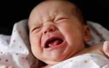 Bé 3 tháng tuổi bị xuất huyết nội sọ vì cách dỗ con sai lầm nhiều phụ huynh mắc phải