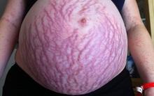 Hình ảnh hãi hùng của một mẹ bầu cảnh báo về căn bệnh phổ biến trong thai kỳ