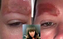 Tưởng xăm cho đẹp, người phụ nữ đâu ngờ nhan sắc bị hủy hoại vì mảng da chân mày sưng đỏ và bong ra