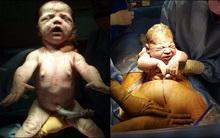 Khoảnh khắc những em bé chào đời chạm tới trái tim hàng triệu người