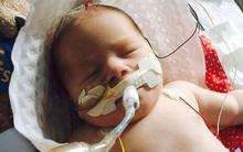 Vừa ra khỏi bụng mẹ, bé sơ sinh đã ngừng thở nhưng phép màu lại xảy ra