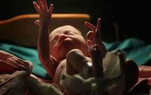 Em bé vừa chào đời, bác sĩ đặt vào túi nhựa trả về cho gia đình chôn cất thì điều ngạc nhiên xảy ra