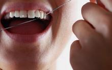 Những nguyên nhân không ngờ khiến bạn bị chảy máu nướu răng