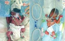 Vừa sinh con trai được 7 ngày, người mẹ lại vào phòng đẻ 2 đứa con nữa