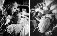 Kinh ngạc trước hình ảnh bé sơ sinh có đầu dài bất thường khi chào đời