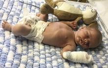 """Bé sơ sinh 9 ngày tuổi suýt mất mạng vì """"nụ hôn thần chết"""" từ chính mẹ đẻ"""