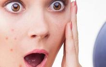 Dấu hiệu gan của bạn đang chứa đầy chất độc và làm bạn tăng cân, da xấu xí: Đọc để biết cách ngăn chặn ngay!