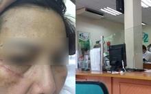 Hà Nội: Hai người phụ nữ đánh nhau ngay tại ngân hàng vì số thứ tự xếp hàng
