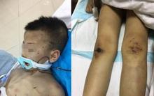 Đến thăm con, mẹ chết lặng khi phát hiện con trai bị vợ hai của chồng đánh đập thậm tệ
