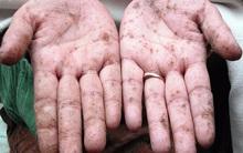 TS Mỹ chỉ rõ 6 dấu hiệu cơ thể nhiễm độc kim loại nặng và cách thải độc hiệu quả