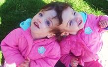 Cặp song sinh dính liền đầu được chẩn đoán chỉ sống được 1 ngày, 10 năm sau bao người kinh ngạc