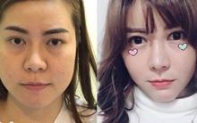 Không hài lòng với vẻ ngoài của mình, thiếu nữ lột xác xinh ngất ngây sau khi chi 1,3 tỷ phẫu thuật thẩm mỹ
