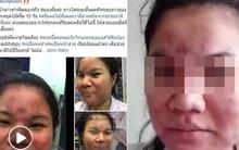 Ham dùng mỹ phẩm rẻ trên mạng, cô gái trẻ phải trả giá đắt với gương mặt biến dạng khủng khiếp