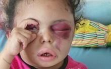 Hình ảnh cô bé 5 tuổi khiến cả thế giới phải sững sờ trước thảm hoạ nhân đạo tại quê hương Yemen