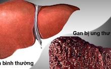 Dấu hiệu quan trọng cảnh báo bệnh gan đang tiến triển trong cơ thể, nếu có thì hãy đi khám