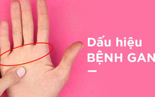 Một điểm trên bàn tay bị đỏ: Dấu hiệu cảnh báo bệnh gan không thể xem nhẹ