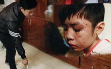Hãy nhìn thật kỹ vào những vết sẹo của em bé bị bạo hành, bạn sẽ thấy cả sự vô cảm và bất lực của chính mình