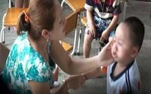 TP.HCM: Cháu bé 3 tuổi nghi bị cô giáo đánh bầm mắt