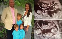 Có 3 con rồi nhưng vẫn cố đẻ đứa thứ 4, bà mẹ choáng váng khi nhìn vào màn hình siêu âm