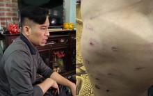 Bố bé trai bị bạo hành ở Đông Anh: