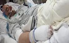 Người đàn ông bị chôn vùi dưới băng tuyết 2 tháng, điều kỳ diệu xảy ra khiến y học không thể lý giải