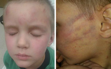 Nghịch ngợm mở quà Giáng sinh sớm, cậu bé 5 tuổi bị bạn trai của mẹ dùng dây nịt đánh dã man