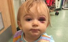 """Bé gái vỡ xương sọ vì """"sát thủ thầm lặng"""" trong nhà mà ít bố mẹ nào để ý đến"""