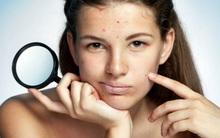 7 nhóm thực phẩm càng ăn càng hủy hoại làn da của bạn một cách trầm trọng