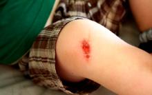 Cẩn thận: Bé gái phải phẫu thuật tim chỉ vì vết trầy xước do té ngã tưởng chừng như vô hại này
