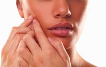 6 sai lầm khi trị mụn trứng cá khiến mụn mọc nhiều hơn và hủy hoại làn da bạn nhanh chóng