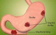 4 loại tổn thương dạ dày phổ biến có thể tiến triển thành khối u ác tính: Hãy biết sớm!