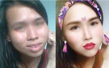 Cô gái có gương mặt đầy khuyết điểm được chỉnh sửa