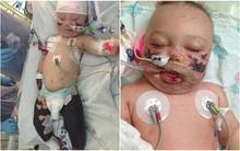 Viêm màng não đã khiến bé trai này chịu thương tổn thế nào, các cha mẹ cần biết