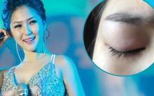 Hương Tràm tiết lộ vẫn chưa được phẫu thuật do mắt bị tổn thương nặng