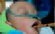 Cầm đũa đùa chơi không may vấp ngã, bé trai 1 tuổi bị chấn thương nội sọ, sức khỏe nguy kịch